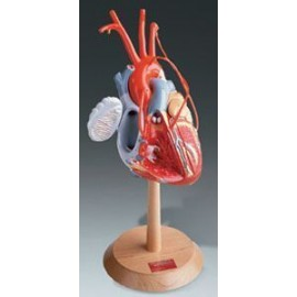 Heart of America Model - with Coronary Bypasses